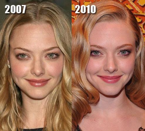 Facial symmetry plastic surgery