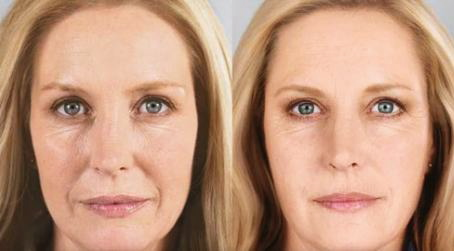 Why Selphyl is Better Than Dermal Fillers