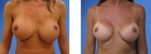 Breast Implant Reduction