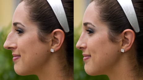 Nose Surgery – Rhinoplasty