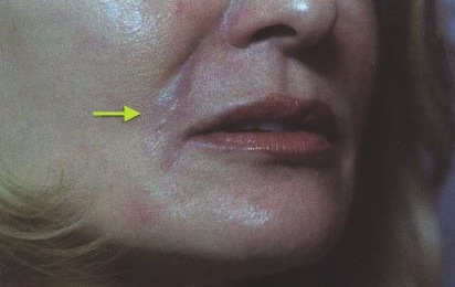 Correcting Restylane and Dermal Filler Mistakes