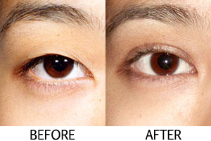 Get Double Eyelids Without The Surgery