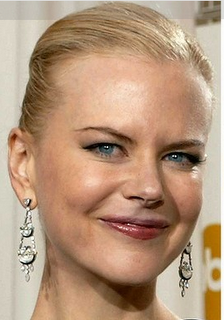 how long does botox last on the forehead