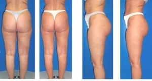 Endermologie Cellulite Treatment