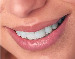 Cosmalite Dental Veneer