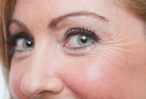 Botox or Dysport – Which is Better for Crow's Feet?