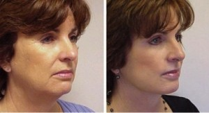 Dental Facelift