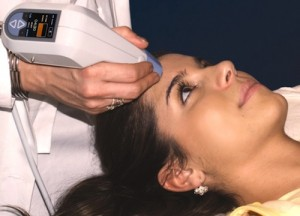 Exilis for Facial Tightening