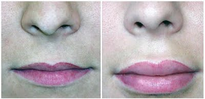 Ulthera To Correct Lip Filler Mistakes